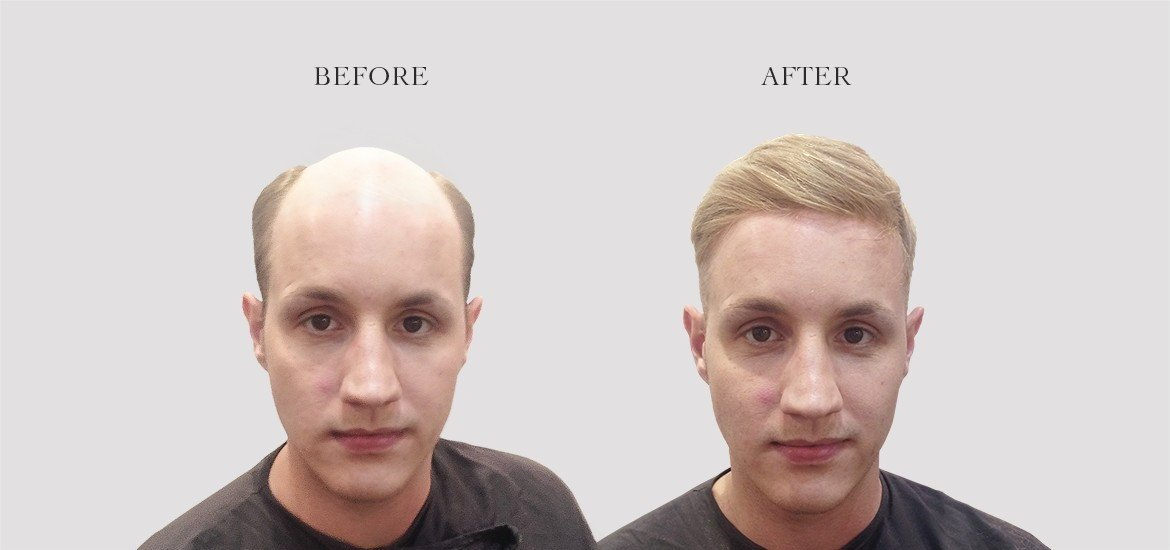 Cochrane Amp Co Hair Replacement Systems In London