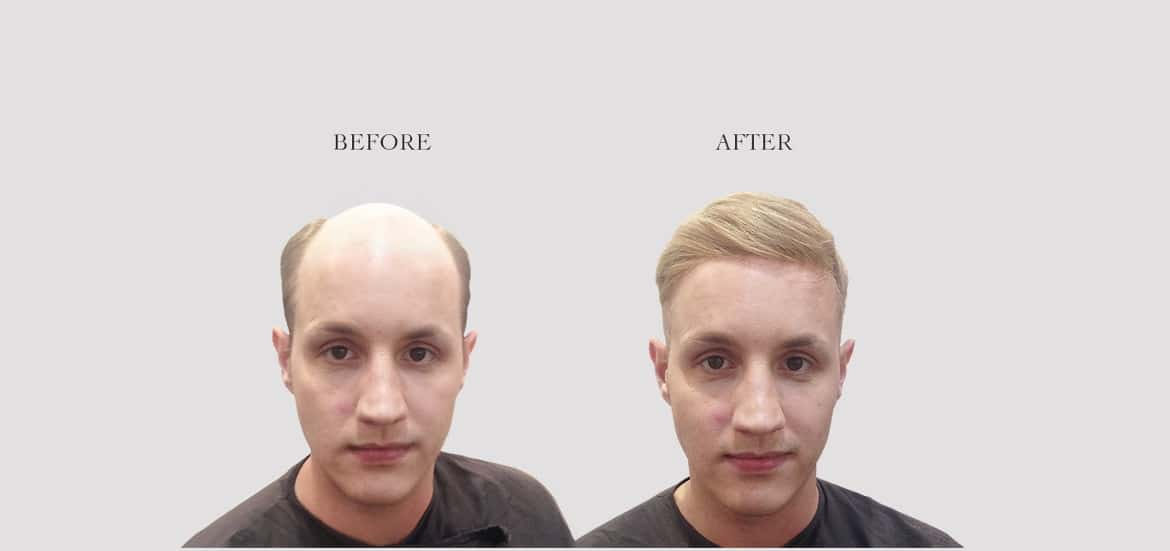 Hair Replacement Systems London